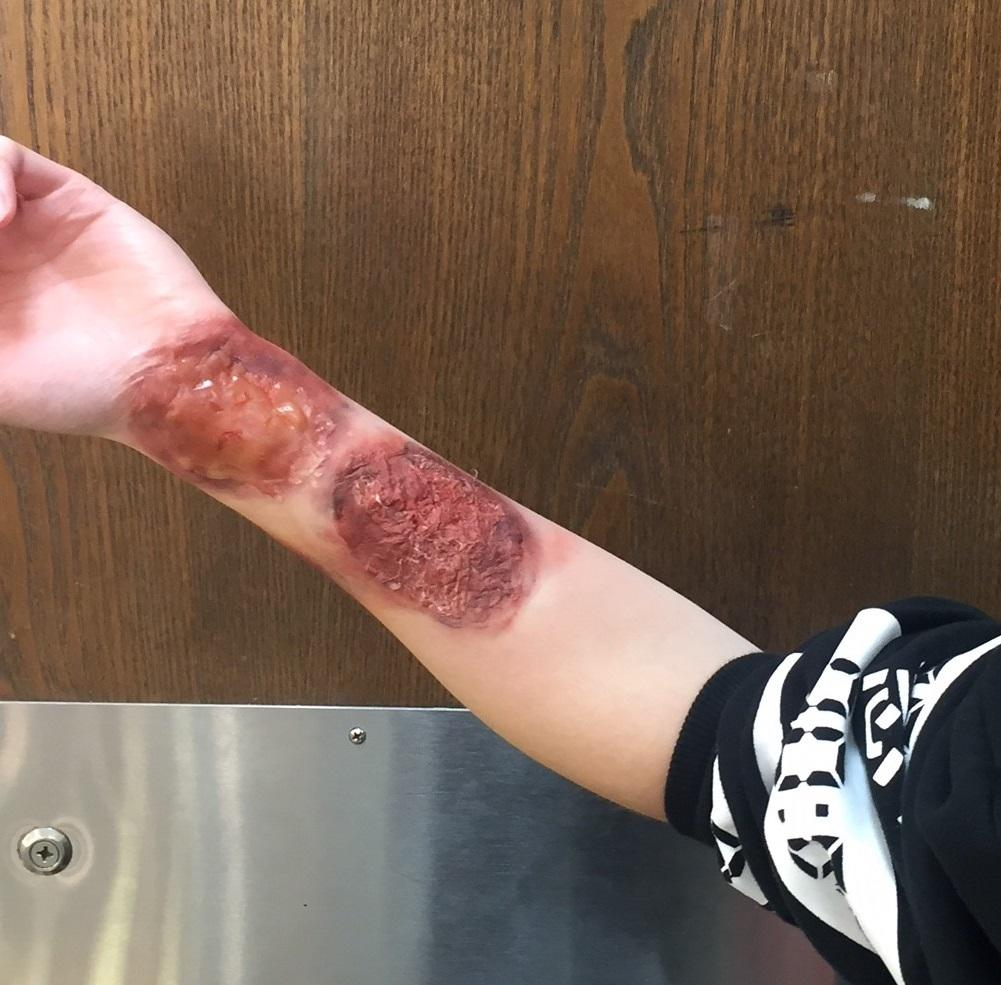 stage burns and bruises